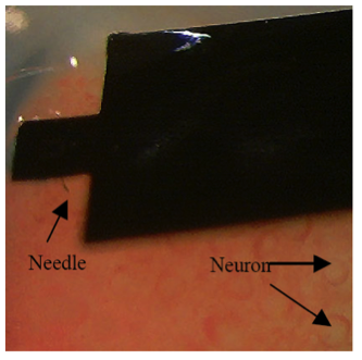 Intracellular Neuronal Recording with Flexible Micro-machining Probe Implants
